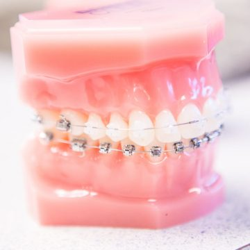 Bone Grafting: Meaning, Procedure, and Types